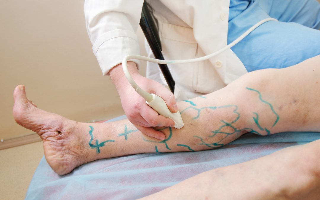 How to Eliminate Varicose Veins