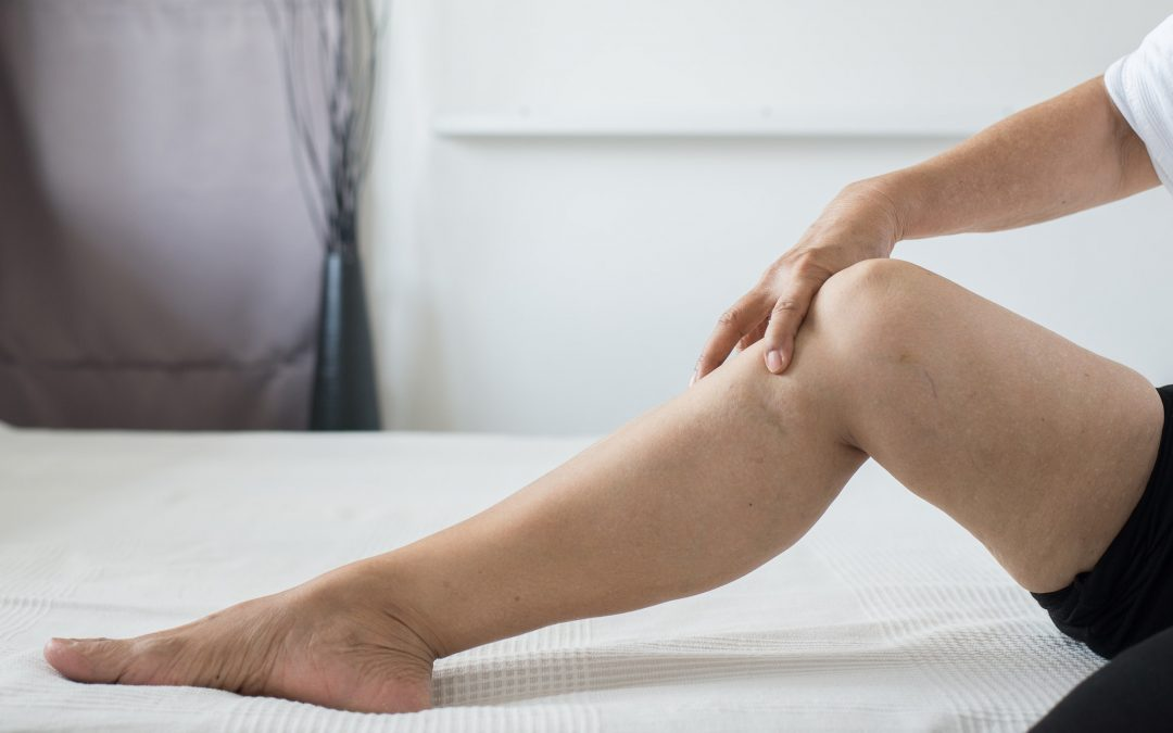 Poor Blood Flow To Legs And What To Do About It